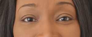 Patients results after a lower blepharoplasty in Jackson, MS with Dr. Jordan