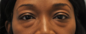 Before a lower eye lift in Jackson MS at Faces, PLLC